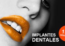 Descuento implantes dentales