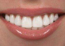 clínica dental Carmona